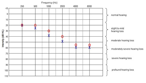 Hearing Chart with high frequency hearing loss