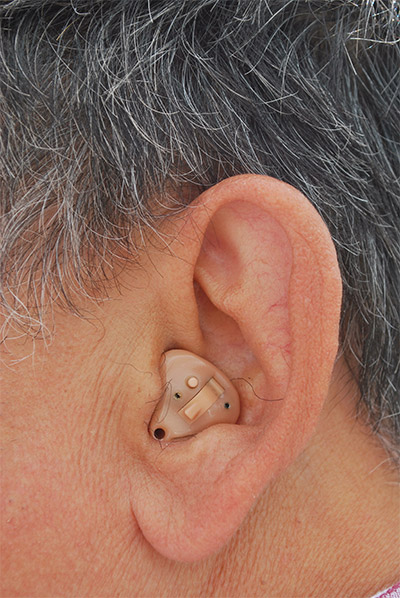 Old Style Hearing Aid
